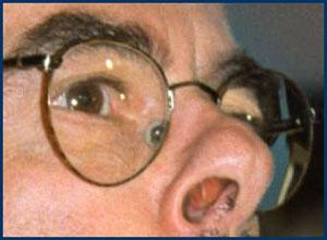 waxmans-nose-copy.jpg
